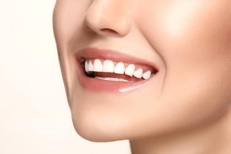Teeth Whitening Brisbane Close Up Smile