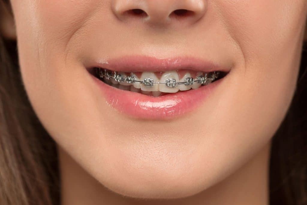 Orthodontist Teeth Braces Brisbane Springwood
