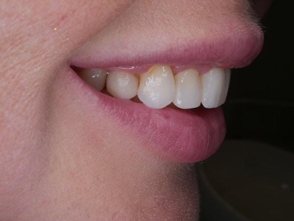 daniela mouth profile left